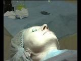 Лазерная шлифовка кожи в МКЦ